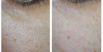 Show and tell how the grout for the pores on the skin 50+